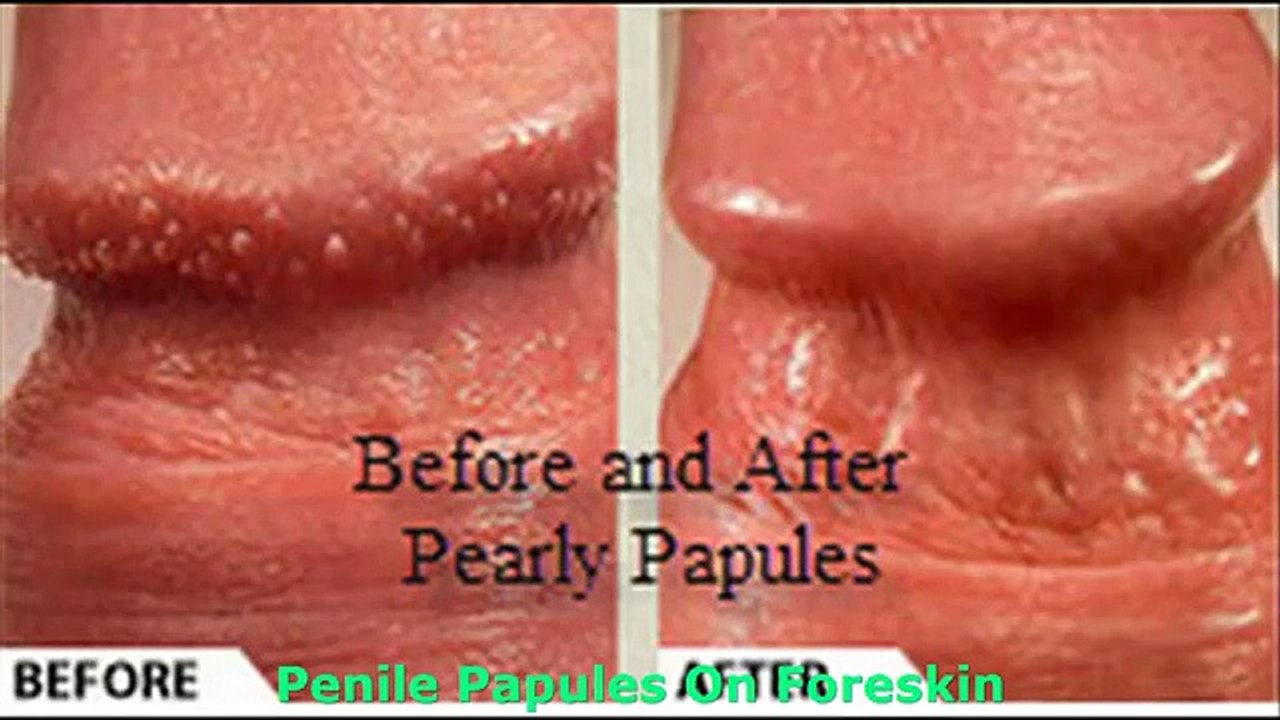 What is pearly penile papules