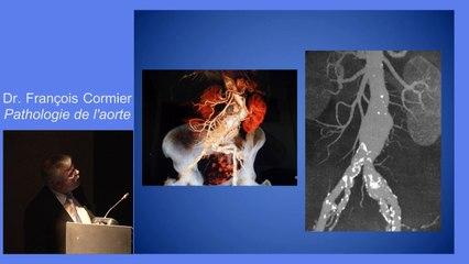 0-diagnostic.et.traitement.des.maladies.aortiques.dr.francois.cormier.video.dailymotion