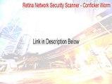 Retina Network Security Scanner - Conficker Worm Serial - Retina Network Security Scanner - Conficker Wormretina network security scanner conficker worm (2015)