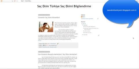 Saç Ekim Türkiye Saç Ekimi Bilgilendirme