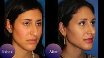 RhinoPlasty New York  Before & After Photos of NYC patients