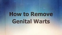 How to Remove Genital Warts - Natural Cure for Genital Warts