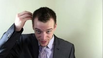 The Science of Hair Loss / Balding
