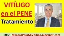 Vitiligo en el Pene tratamiento natural | Que son las Manchas Blancas de Vitíligo en el Pene glande prepucio tronco