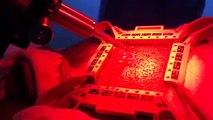 Greffe capillaire technologie ARTAS par The Clinic Paris