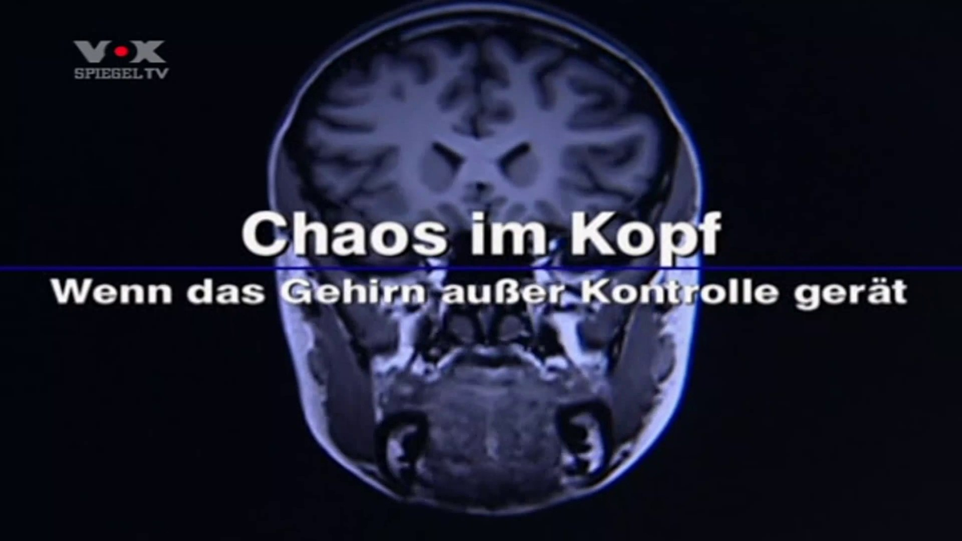 Chaos im Kopf 1v2 Wenn das Gehirn ausser Kontrolle gerät 2008 by ARTBLOOD