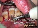 Détartrage de dents extrême
