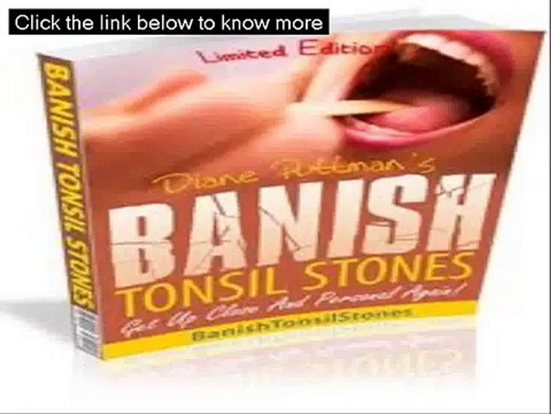 Banish Tonsil Stones Free - Banish Tonsil Stones Guide