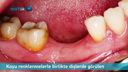 Diş Çürükleri Nasıl Oluşur?