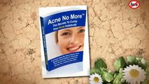 Acne Vulgaris treatment home remedies, Acne No More by Mike walden's