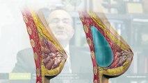 İzsiz göğüs büyütme ameliyatları doğum ve emzirmeye engel midir? Dr. Nuri Battal