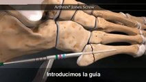Asi fue la operacion en el dedo de James Rodriguez en Murcia con Real Madrid