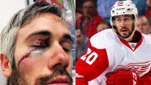 Red Wings' Drew Miller Almost Lost Eye After Taking Skate to Face