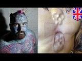 Помешанный на татуировках  имплантировал себе в грудь череп