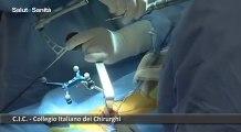 salute+servizio+Il prof. Nicola Surico è il presidente del Collegio italiano dei Chirurghi, associazione di categoria che riunisce quasi tutte le Società Scientifiche di Area Chirurgica.mp4