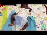QUOI DE NEUF DOC?: Un bébé de quatre mois se fait enlever son jumeau parasite.