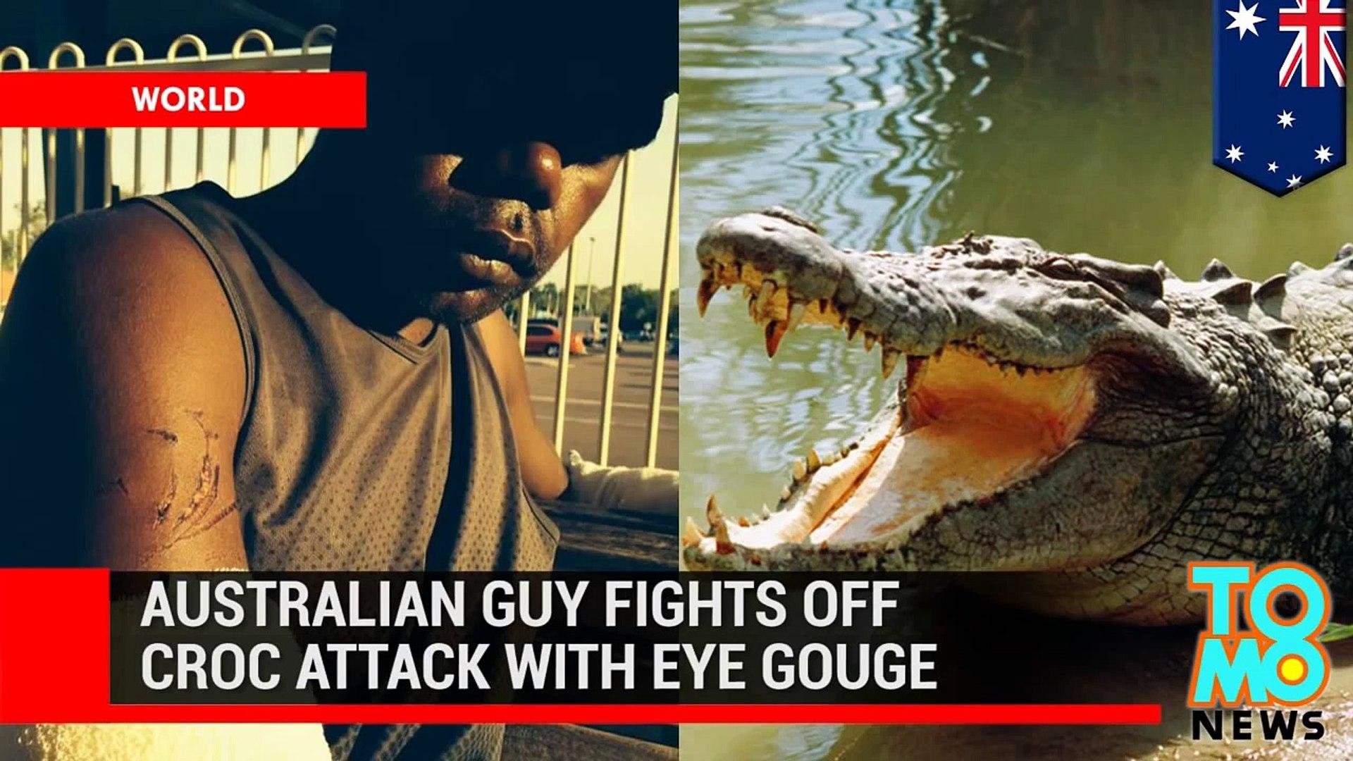 رجل من أستراليايقلع عين تمساح هاجمه