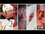 Christian Ehrhoff se fait arracher l'oreille... aïe aïe aïe...