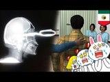 ER horror stories: Man walks into ER with scissors stuck in his head
