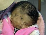 Baby born with two faces, four eyes, two noses, two mouths