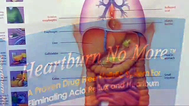 Heartburn No More Free Download – Cure Your Heartburn Now And Enjoy Your Life.
