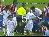 WORST FOOTBALL INJURIES EVER Football Players Top 10
