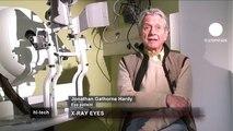 euronews hi-tech - Nueva terapia con rayos X para curar la degeneración macular