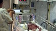 Conjoined twins to be separated