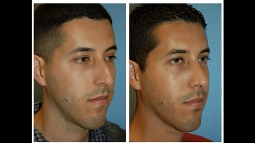 Ethnic Rhinoplasty Middle Eastern Versus Hispanic Nose
