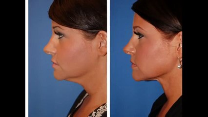 Neck Lifts How Mobile Phones and Skype Are Changing the Shape of Faces
