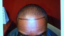 Black Man Dense Hairline Hair Loss Transplant Restoration Surgery Dr. Diep 1 Yr Follow Up Result www.mhtaclinic.com