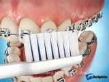 Nettoyage son appareil dentaire - astuces pour mieux nettoye son appareil dentaire