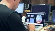 Magnetic Resonance Imaging Explained
