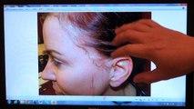 Woman Hair Loss Transplant Restoration Surgery Dr. Diep www.mhtaclinic.com 12 Months Follow Up Result
