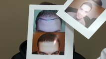 Excellent Male Hairline Hair Loss Transplant Restoration Surgery Dr. Diep www.mhtaclinic.com Before After Photos