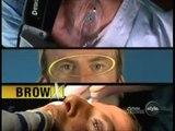 Extreme Makeover of Fritz Beverly Hills plastic surgeon Dr Jon Perlman