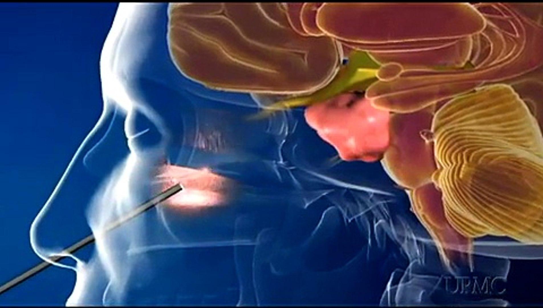 Minimally Invasive Brain Surgery at UPMC with Dr  Paul Gardner
