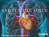 Coronary Artery Angioplasty (PCI, Heart Stent Surgery)