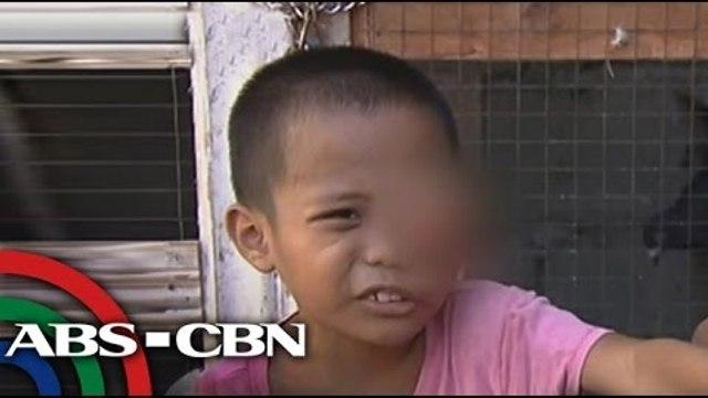 Lingkod Kapamilya: A boy with eye tumor calls for help