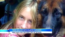 Bullied Teen Gets Surgery to Fix Ears, Nose and Chin; Bullied Since She Was 7-Years-Old