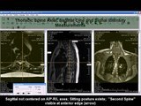 Moved Thoracic Spine 4-5 Degrees and Signal Intensity Measurements: 0-1468Hz