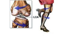douleurs au genou - 7 mauvaises habitudes à modifier pour réduire vos douleurs aux genoux