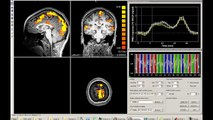 The Centre for Brain and Mind - Research on predicting future actions - Brain timecourse
