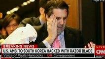 【韓国崩壊】駐韓米国大使リッパート氏が韓国人テロリストに襲われ負傷 :米韓関係を揺るがす陰謀か、火病韓国人の狂気テロ発生  MAXSCOPE 皇国 JOURNAL