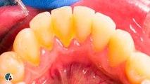Bleeding Gums, Dentist Dr. Michel Fancelli, Longeuil, Quebec, Canada