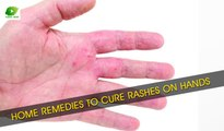 Home Remedies To Cure Rashes On Hands | Best Health Tips | Educational Videos
