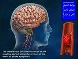 علاج الجلطة الدماغية ( حصريا )