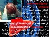 L'encéphalopathie hépatique - الغيبوبة الكبدية أو أنسيفالوباتي الكبد