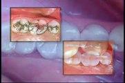 La resina para tratamientos dentales
