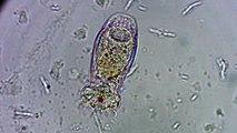 Bellissimo Rotifero mangia una Diatomea - Beautiful Rotifer eats a Diatom